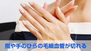 毛細血管が切れる・浮き出る病気(内出血する病気)